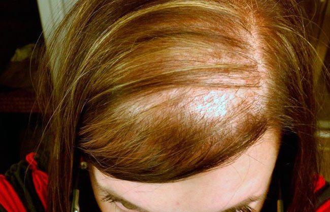 Pérdida de cabello - Problemas capilares