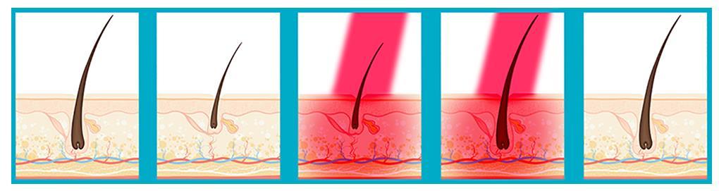 Láser de Baja potencia - Tratamientos para la caida de pelo