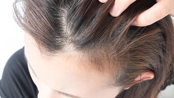 Pérdida difusa de cabello