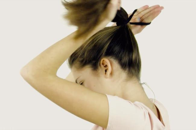 La alopecia de tracción